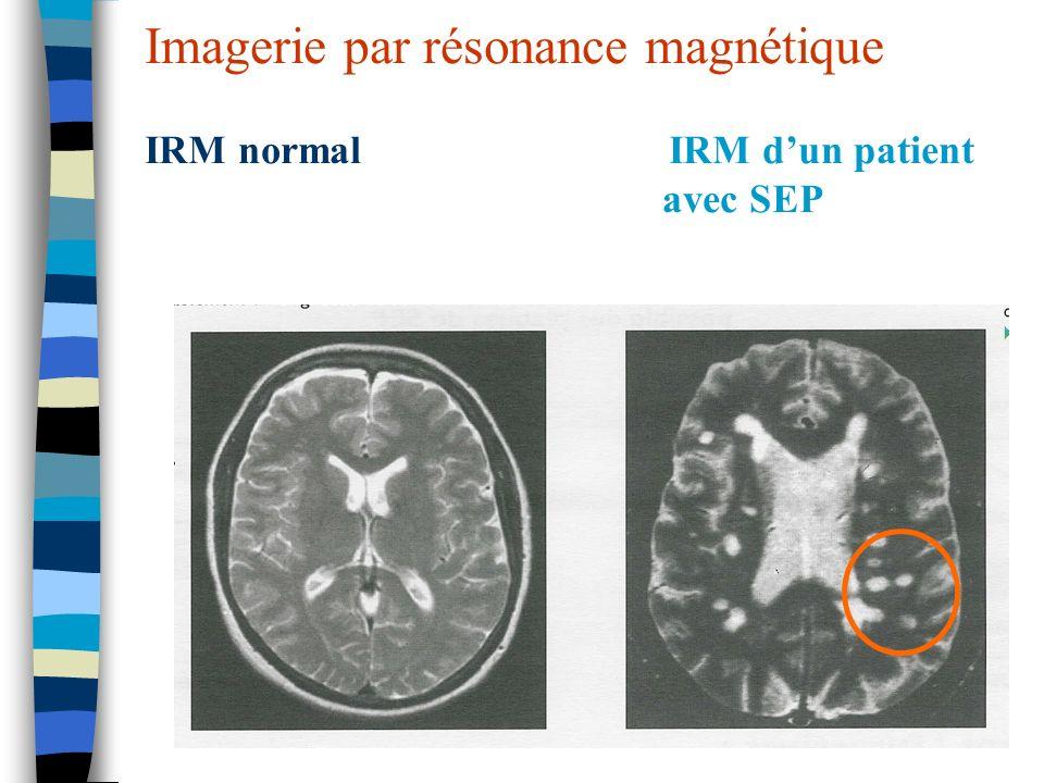 Imagerie par résonance magnétique IRM normal IRM dun patient avec SEP