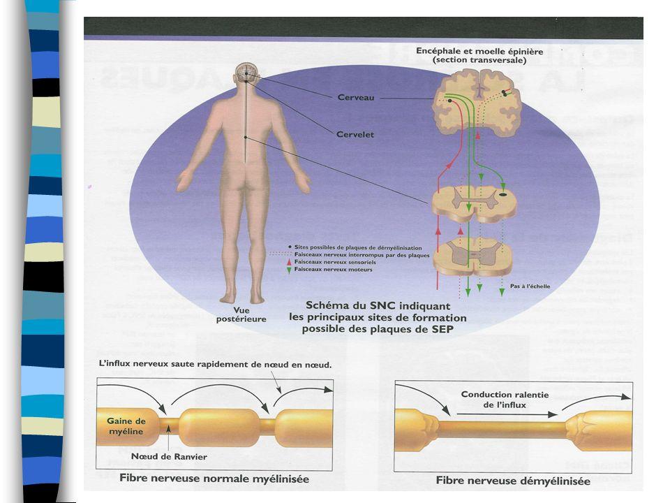 Sclérose en plaques Les symptômes varient dune personne à lautre.