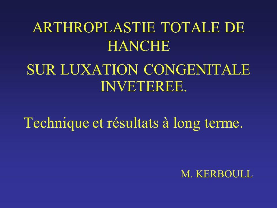 Sur une série personnelle de 535 arthroplasties totales sur luxation congénitale, dont 352 sur luxation haute, opérées entre 1969 et 2004, les 118 premières PT sur luxation postérieure et intermédiaire ont fait lobjet de plusieurs études.
