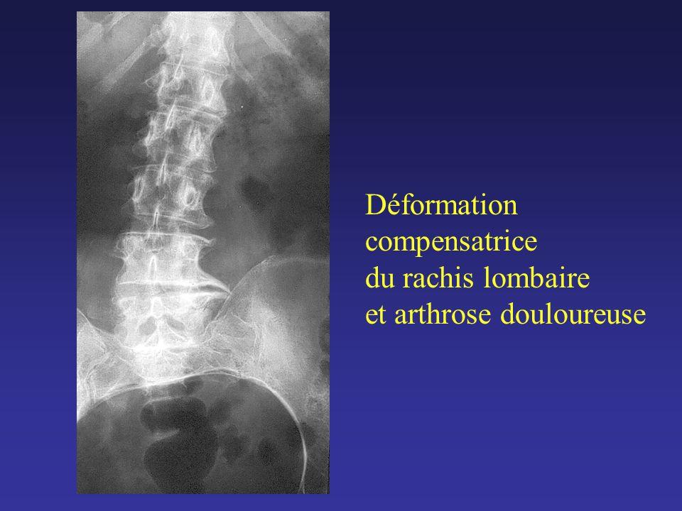 Déformation compensatrice du rachis lombaire et arthrose douloureuse