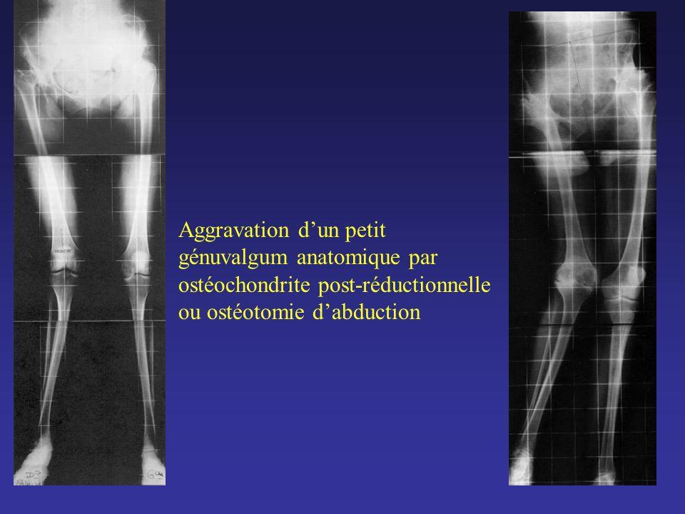 Aggravation dun petit génuvalgum anatomique par ostéochondrite post-réductionnelle ou ostéotomie dabduction