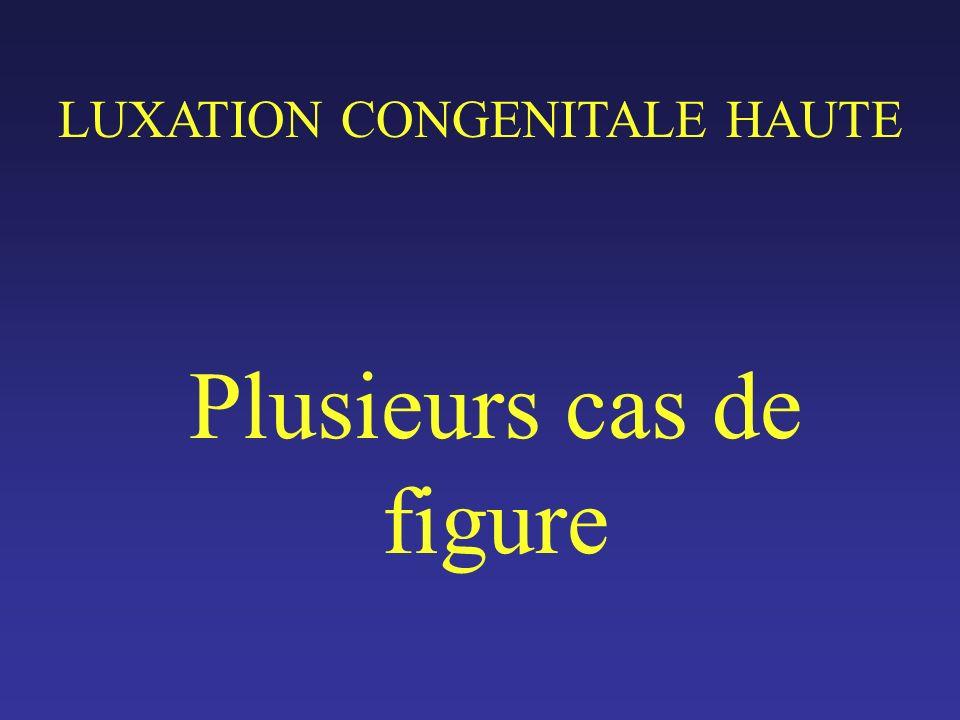 MATERIEL 89 PATIENTS (8 HOMMES, 81 FEMMES) DUN AGE MOYEN DE 52 ANS (29-78) 119 LUXATIONS HAUTES 30 bilatérales 59 unilatérales, avec une hanche opposée - luxation basse ou subluxation (15) - dysplasique (23) - normale (21)