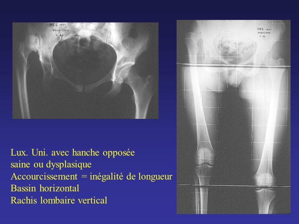 RESULTATS CLINIQUES (Cotation Merle dAubigné) 40 vivants, 61 hanches suivies 18 à 32 ans Avant réintervention Ex.