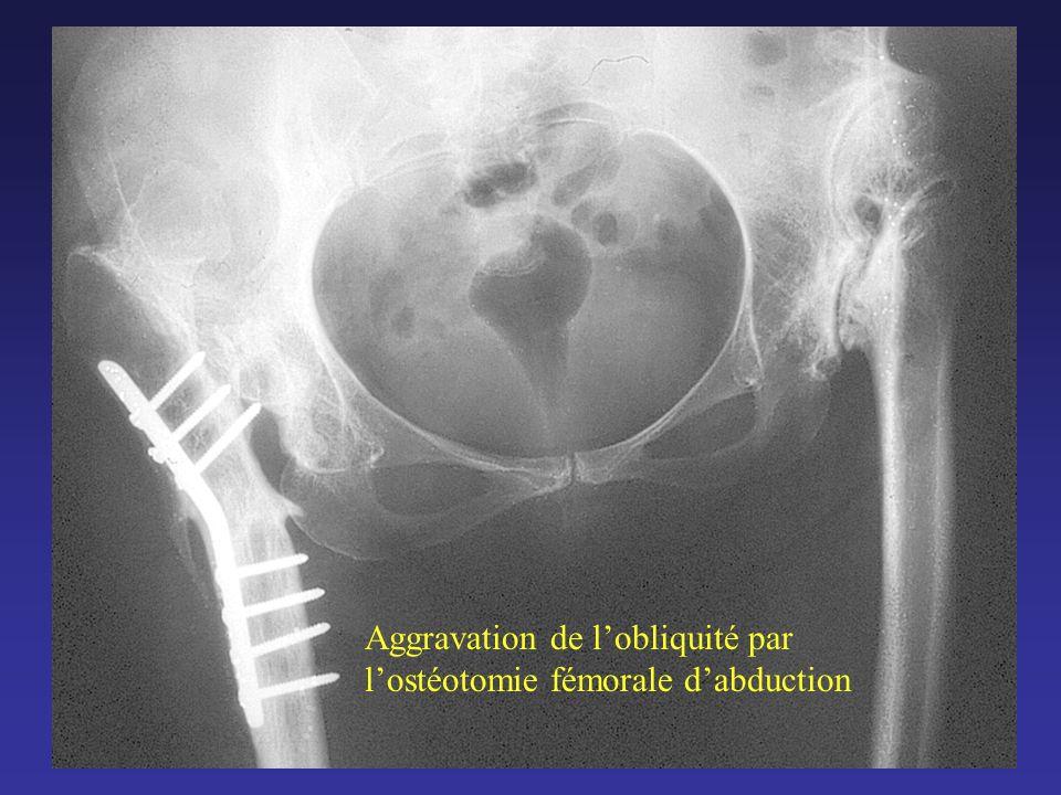 METHODE AVANT LINTERVENTION : EVALUATION COMPLETE DU PATIENT - comprenant : la hanche luxée, la hanche controlatérale, le rachis lombaire, les genoux.