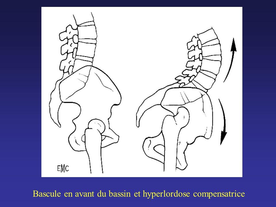 RESULTAT SUR LE GENOU SOUS JACENT Sur les 18 genoux douloureux avant larthroplastie de hanche : –10 ont été bien soulagés – 8 ont nécessité une intervention (4 ostéotomies et 4 prothèses)