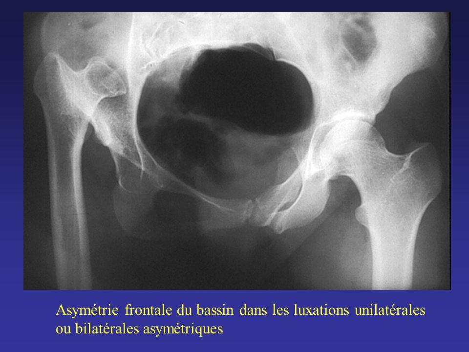 Asymétrie frontale du bassin dans les luxations unilatérales ou bilatérales asymétriques