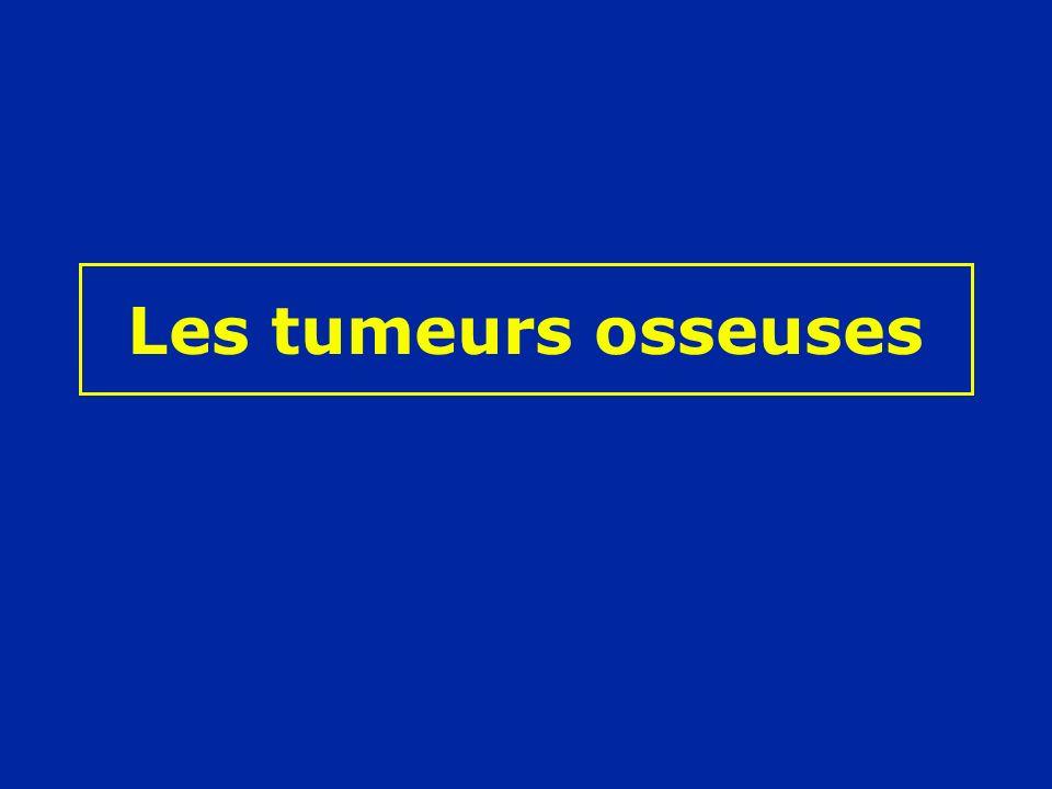 Tumeurs osseuses Tumeurs productrices de tissu osseux Tumeurs productrices de tissu cartilagineux Tumeurs à cellules géantes Tumeurs de la moelle osseuse Tumeurs du tissu conjonctif Lésions peudo-tumorales Cancer secondaire des os