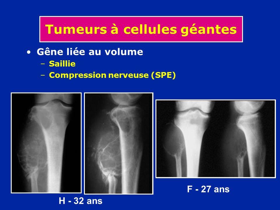F - 27 ans H - 32 ans Tumeurs à cellules géantes Gêne liée au volume –Saillie –Compression nerveuse (SPE)