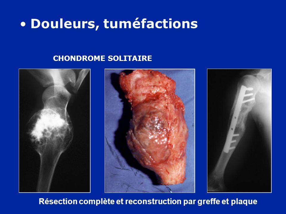 Résection complète et reconstruction par greffe et plaque CHONDROME SOLITAIRE Douleurs, tuméfactions
