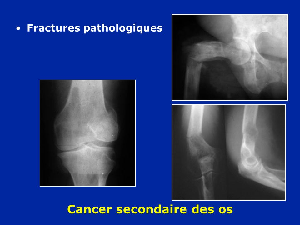 Cancer secondaire des os Fractures pathologiques