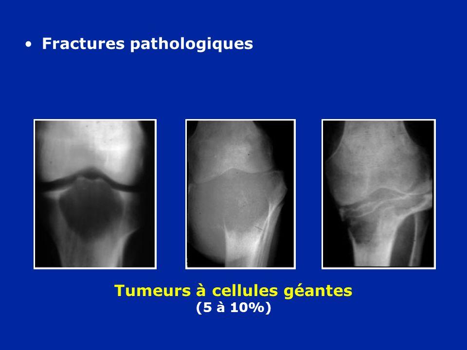 Tumeurs à cellules géantes (5 à 10%) Fractures pathologiques