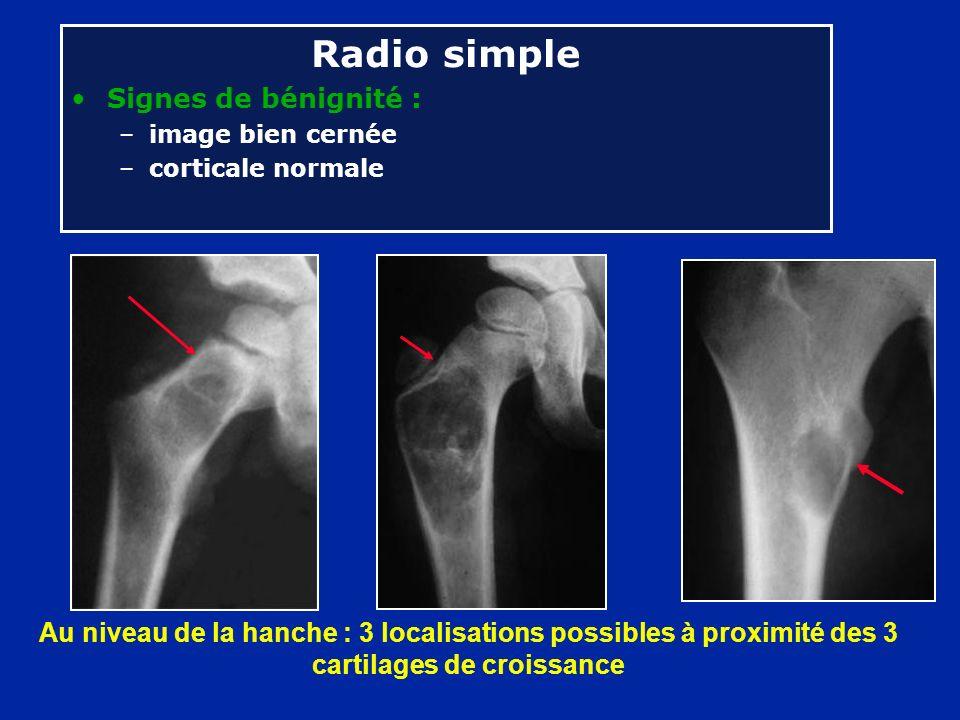 Au niveau de la hanche : 3 localisations possibles à proximité des 3 cartilages de croissance Radio simple Signes de bénignité : –image bien cernée –c