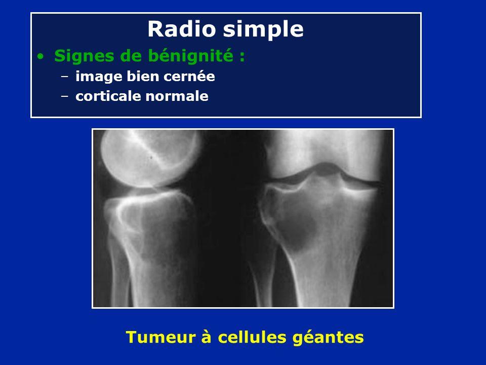 Radio simple Signes de bénignité : –image bien cernée –corticale normale Tumeur à cellules géantes