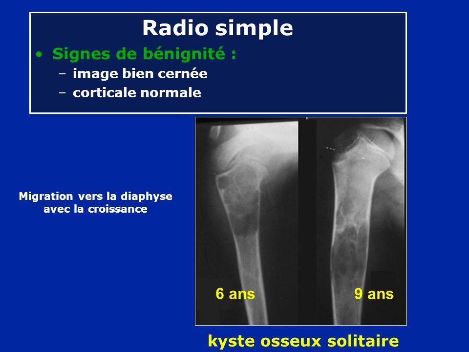 Radio simple Signes de bénignité : –image bien cernée –corticale normale kyste osseux solitaire Migration vers la diaphyse avec la croissance 6 ans 9