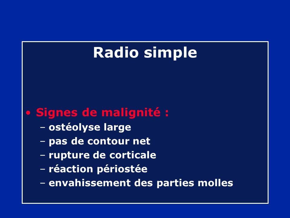 Radio simple Signes de malignité : –ostéolyse large –pas de contour net –rupture de corticale –réaction périostée –envahissement des parties molles