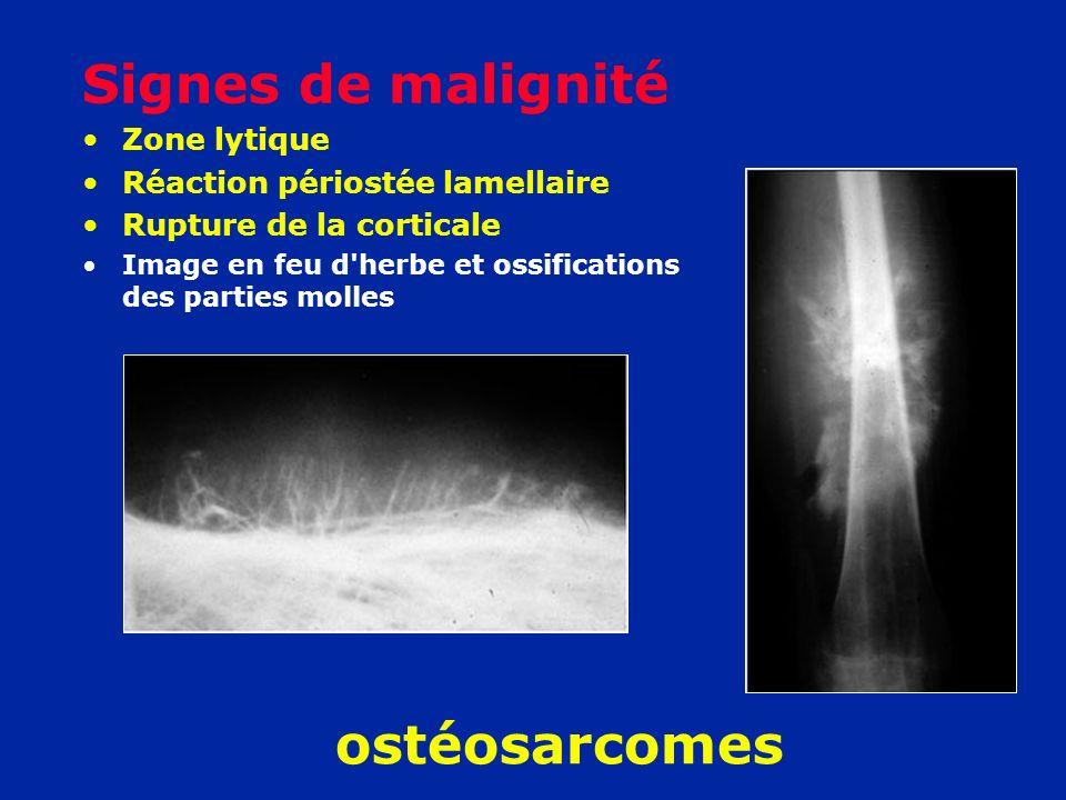 Signes de malignité Zone lytique Réaction périostée lamellaire Rupture de la corticale Image en feu d'herbe et ossifications des parties molles ostéos