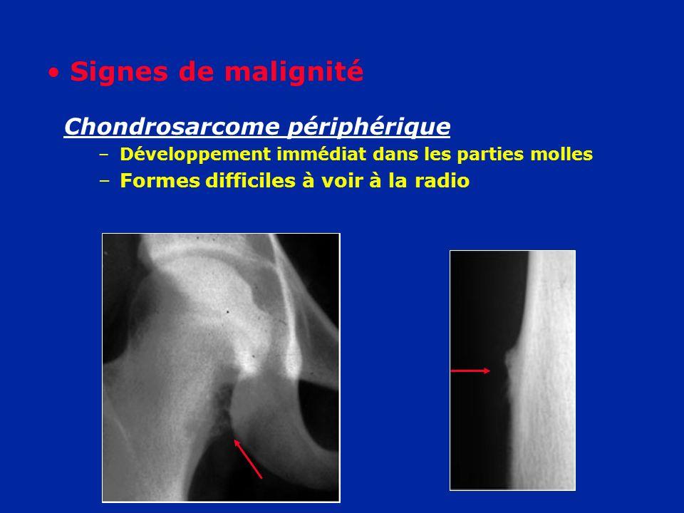 Chondrosarcome périphérique –Développement immédiat dans les parties molles –Formes difficiles à voir à la radio Signes de malignité