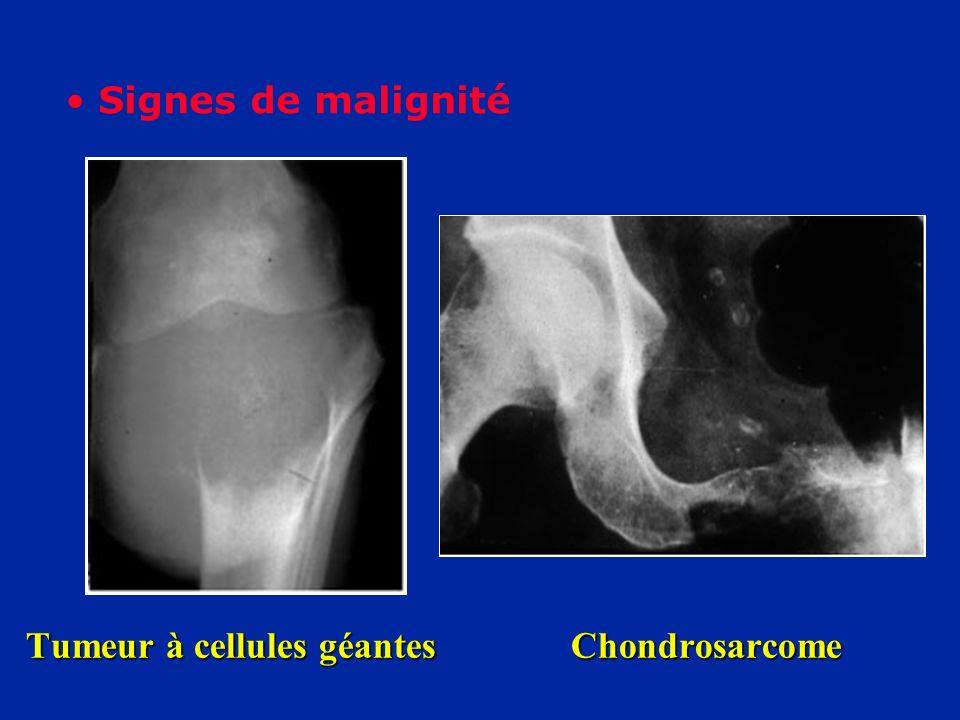 Tumeur à cellules géantes Chondrosarcome Signes de malignité