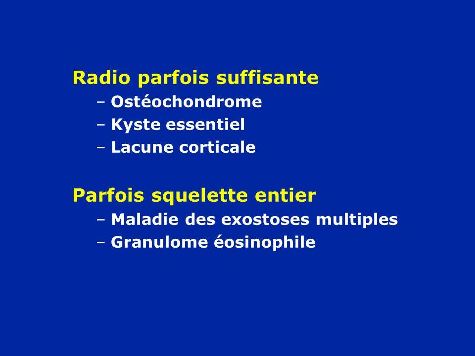 Radio parfois suffisante –Ostéochondrome –Kyste essentiel –Lacune corticale Parfois squelette entier –Maladie des exostoses multiples –Granulome éosin