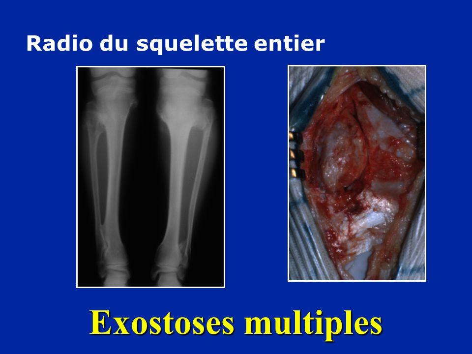 Exostoses multiples Radio du squelette entier