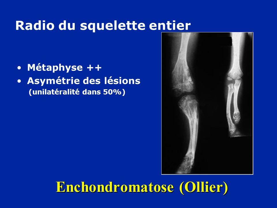 Enchondromatose (Ollier) Métaphyse ++ Asymétrie des lésions (unilatéralité dans 50%) Radio du squelette entier