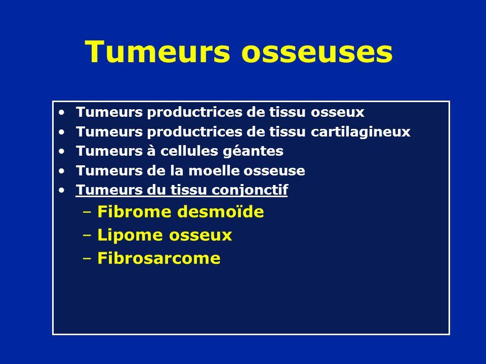 Tumeurs osseuses Tumeurs productrices de tissu osseux Tumeurs productrices de tissu cartilagineux Tumeurs à cellules géantes Tumeurs de la moelle osseuse Tumeurs du tissu conjonctif Lésions peudo-tumorales –Kyste osseux –Kyste anévrismal –Lacune métaphysaire –Granulome éosinophile –Dysplasie fibreuse