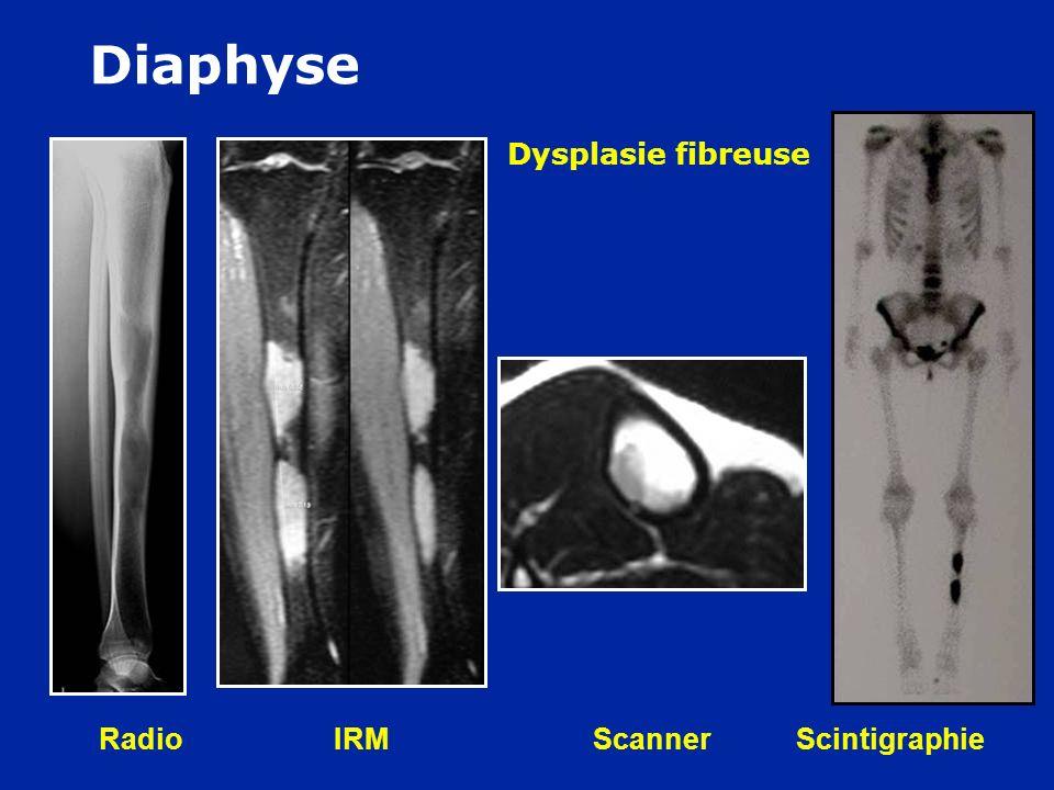 Radio IRM Scanner Scintigraphie F 30 ans : Douleurs à la course Dysplasie fibreuse Diaphyse