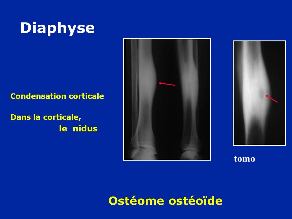 Condensation corticale Dans la corticale, le nidus tomo Diaphyse Ostéome ostéoïde