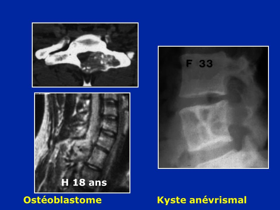 Ostéoblastome Kyste anévrismal H 18 ans