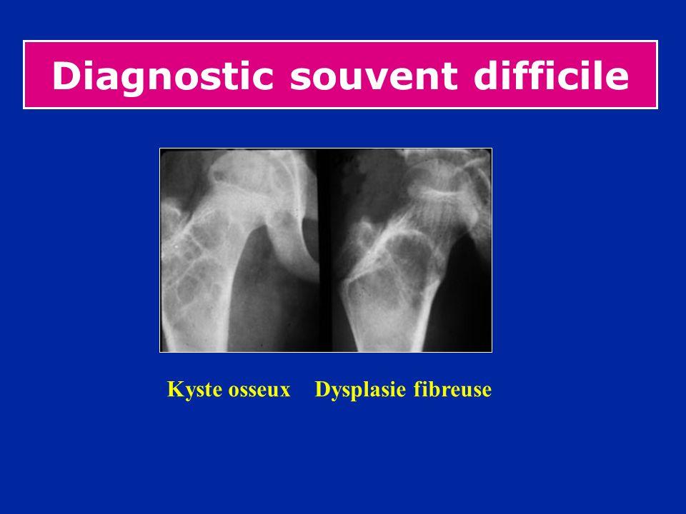 Diagnostic souvent difficile Kyste osseux Dysplasie fibreuse