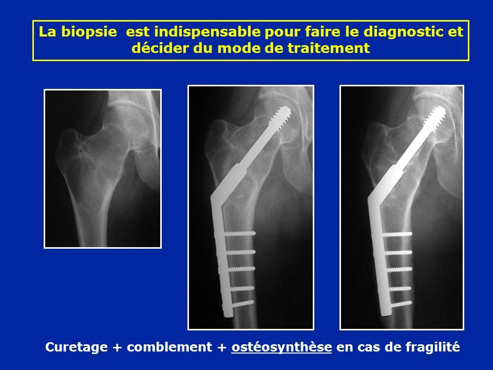 Curetage + comblement + ostéosynthèse en cas de fragilité La biopsie est indispensable pour faire le diagnostic et décider du mode de traitement