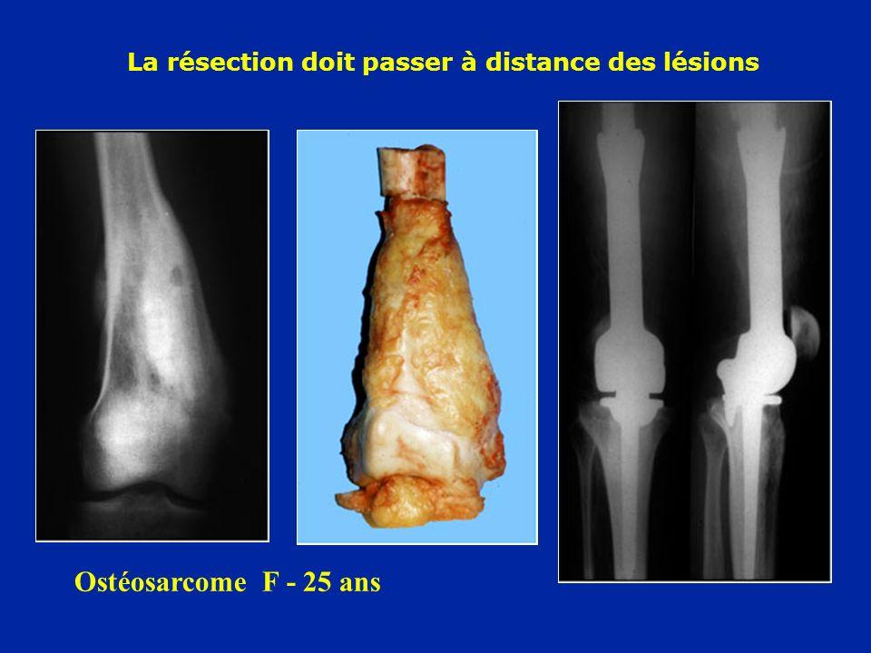 Ostéosarcome F - 25 ans La résection doit passer à distance des lésions