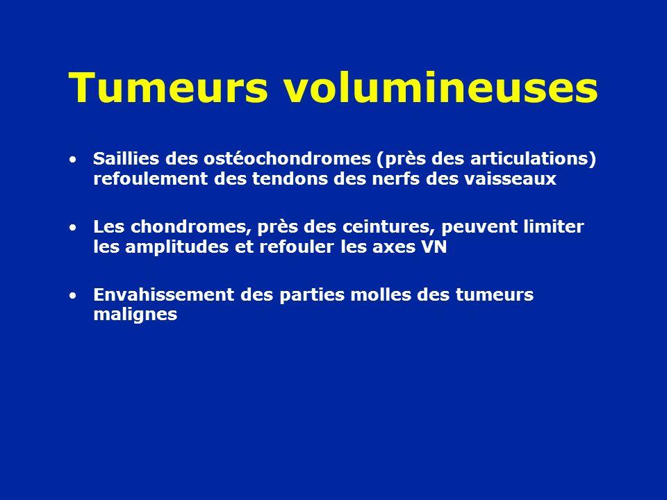 Tumeurs volumineuses Saillies des ostéochondromes (près des articulations) refoulement des tendons des nerfs des vaisseaux Les chondromes, près des ce