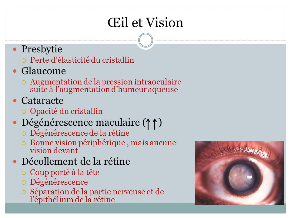 Presbytie Perte délasticité du cristallin Glaucome Augmentation de la pression intraoculaire suite à laugmentation dhumeur aqueuse Cataracte Opacité du cristallin Dégénérescence maculaire ( ) Dégénérescence de la rétine Bonne vision périphérique, mais aucune vision devant Décollement de la rétine Coup porté à la tête Dégénérescence Séparation de la partie nerveuse et de lépithélium de la rétine