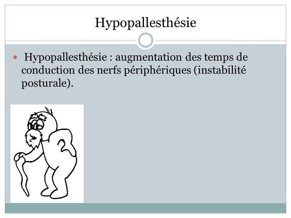 Hypopallesthésie Hypopallesthésie : augmentation des temps de conduction des nerfs périphériques (instabilité posturale).