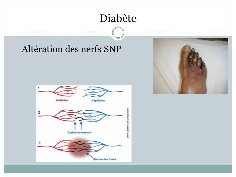 Diabète Altération des nerfs SNP