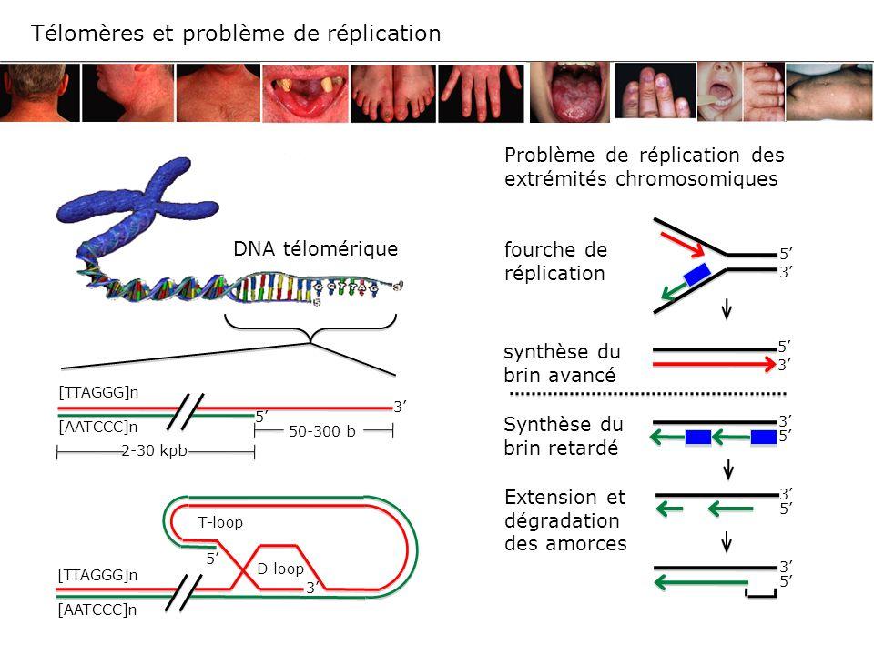 [TTAGGG]n [AATCCC]n 2-30 kpb 50-300 b 3 5 [TTAGGG]n [AATCCC]n T-loop D-loop 5 3 Problème de réplication des extrémités chromosomiques fourche de répli