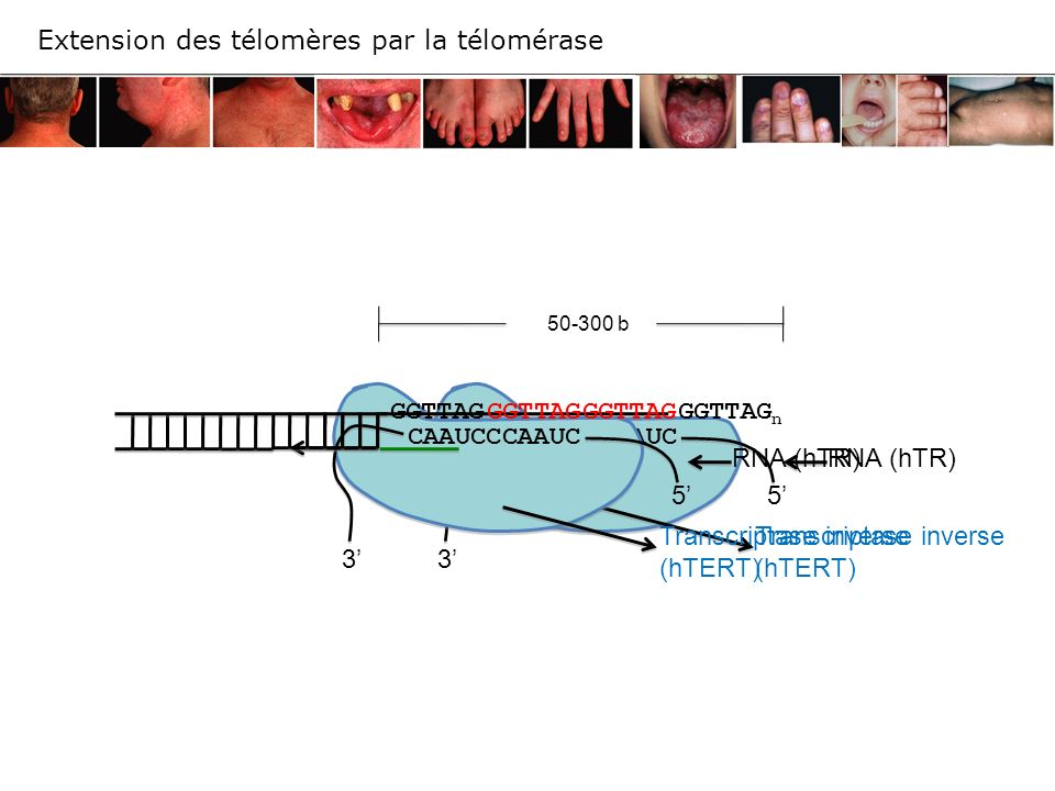 Transcriptase inverse (hTERT) RNA (hTR) 3 5 CAAUCCCAAUC Transcriptase inverse (hTERT) RNA (hTR) 3 5 CAAUCCCAAUC 50-300 b GGTTAGGGTTAG GGTTAG n GGTTAG
