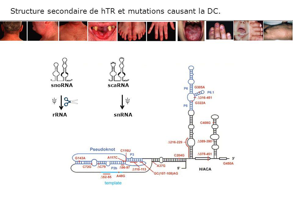 GAR1 NAF1 (3) (2) CTD polII Nucléole, Corps de Cajal Noyau Site de transcription des RNA H/ACA Modèle de la biogénèse des RNA H/ACA in vivo.