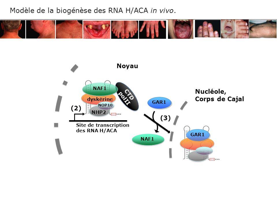GAR1 NAF1 (3) (2) CTD polII Nucléole, Corps de Cajal Noyau Site de transcription des RNA H/ACA Modèle de la biogénèse des RNA H/ACA in vivo. dyskérine