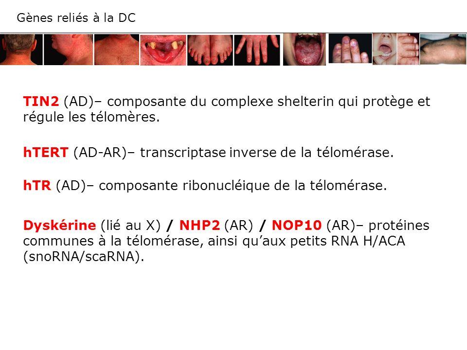 Gènes reliés à la DC TIN2 (AD)– composante du complexe shelterin qui protège et régule les télomères. hTERT (AD-AR)– transcriptase inverse de la télom