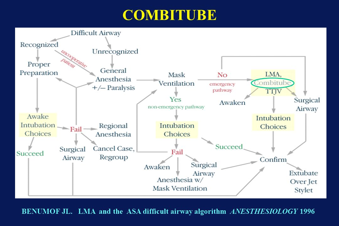 BENUMOF JL. LMA and the ASA difficult airway algorithm ANESTHESIOLOGY 1996 COMBITUBE