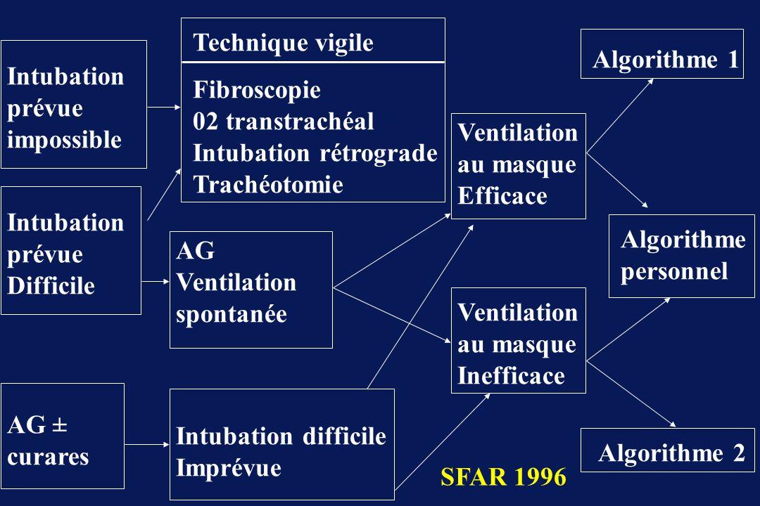 membrane Cricothyroidienne 1 cm Epiglotte Cordes Vocales membrane Cricothyroidienne Technique du second guide Intubation Trachéale Rétrograde