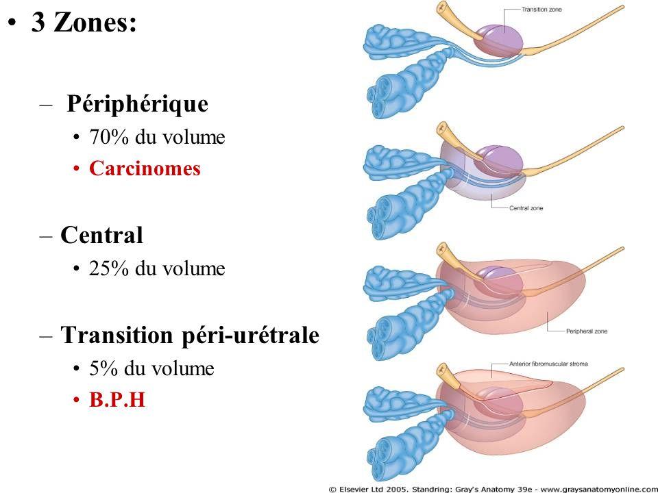 3 Zones: – Périphérique 70% du volume Carcinomes –Central 25% du volume –Transition péri-urétrale 5% du volume B.P.H