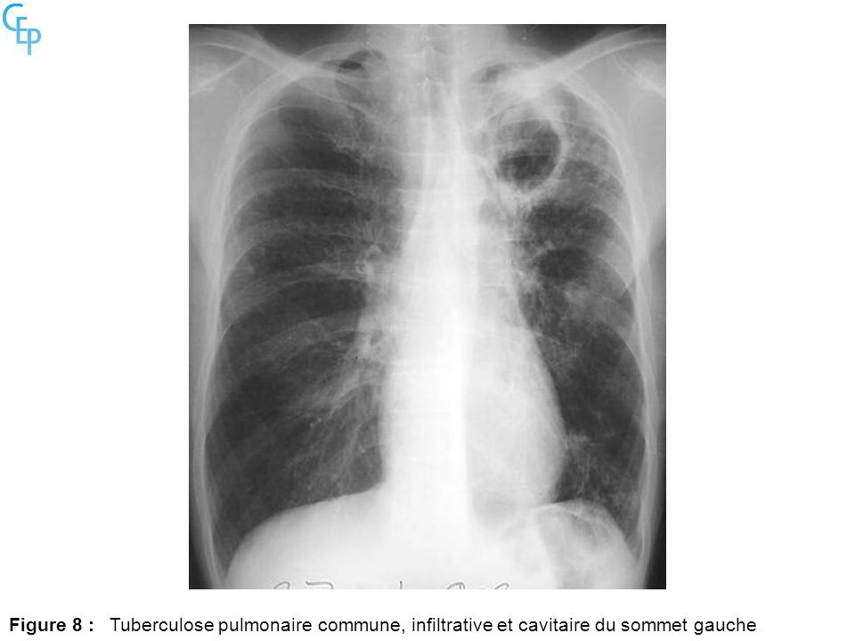 Figure 8 :Tuberculose pulmonaire commune, infiltrative et cavitaire du sommet gauche