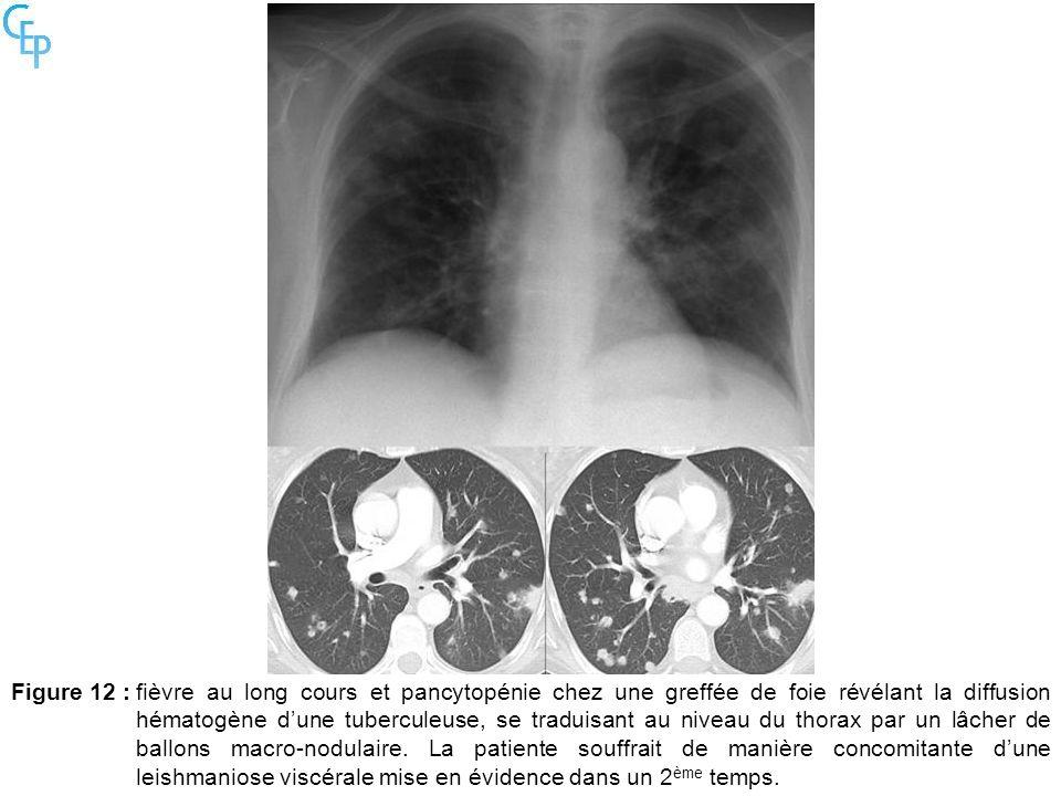 Figure 12 :fièvre au long cours et pancytopénie chez une greffée de foie révélant la diffusion hématogène dune tuberculeuse, se traduisant au niveau d