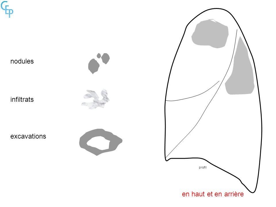 nodules infiltrats excavations profil en haut et en arrière