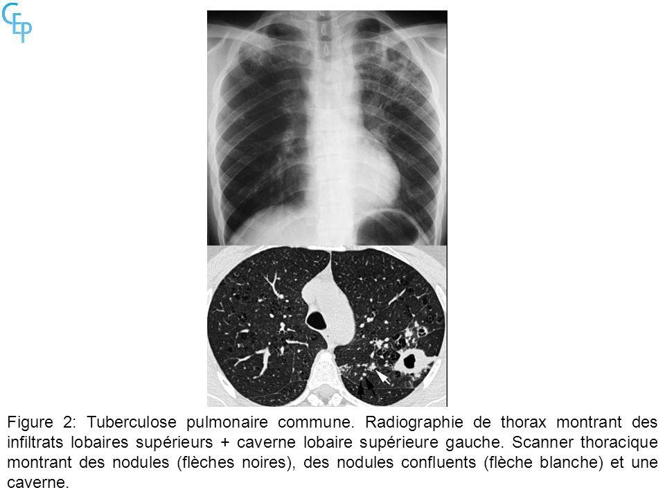 Figure 2: Tuberculose pulmonaire commune. Radiographie de thorax montrant des infiltrats lobaires supérieurs + caverne lobaire supérieure gauche. Scan