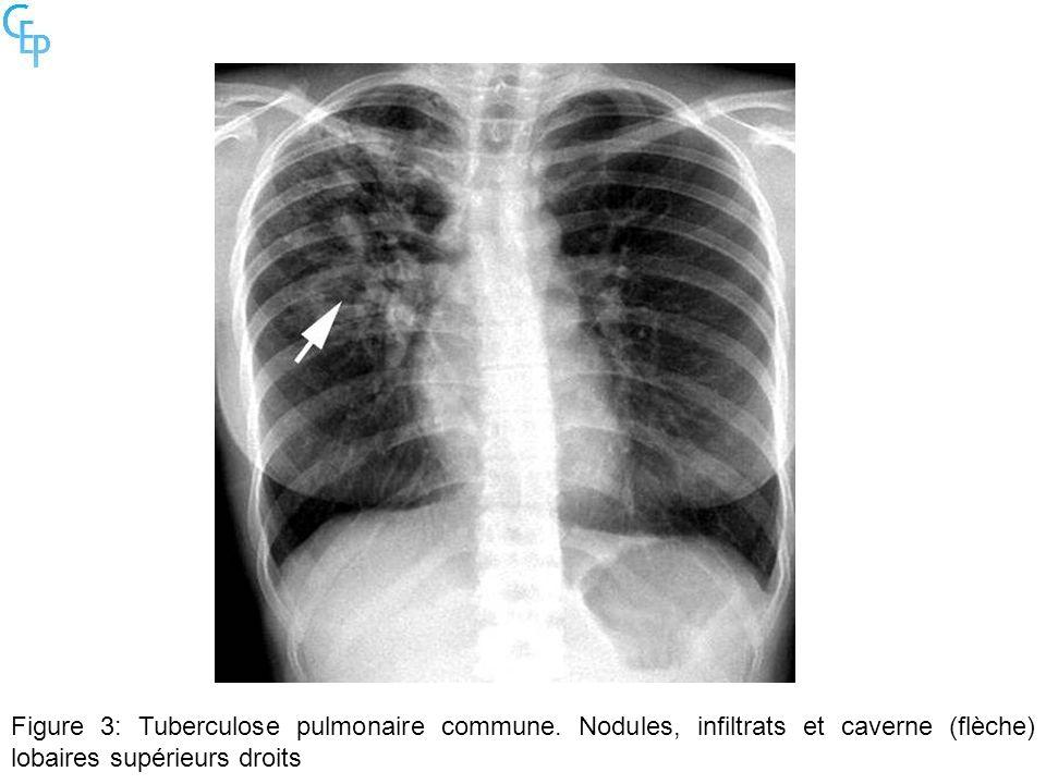 Figure 3: Tuberculose pulmonaire commune. Nodules, infiltrats et caverne (flèche) lobaires supérieurs droits