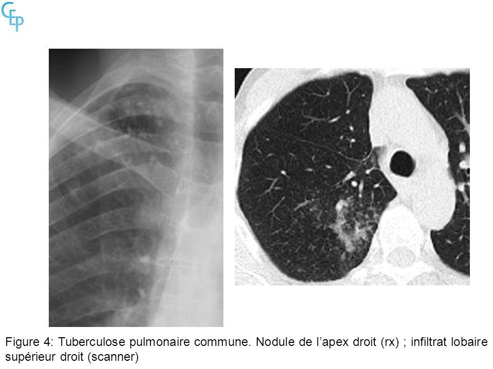 Figure 4: Tuberculose pulmonaire commune. Nodule de lapex droit (rx) ; infiltrat lobaire supérieur droit (scanner)